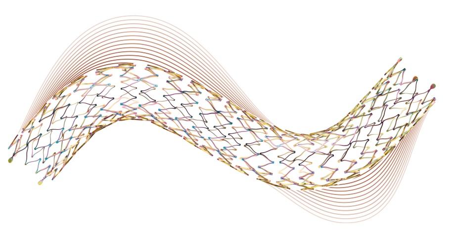 Периферический самораскрывающийся стент Astron® от BIOTRONIK