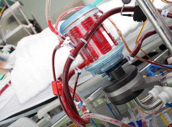 Особенности подготовки и технология использования аппарата искусственного кровообращения